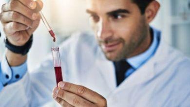يأمل خبراء في أن يساعد هذا التطور في التشخيص المبكر عندما يكون العلاج أسهل.