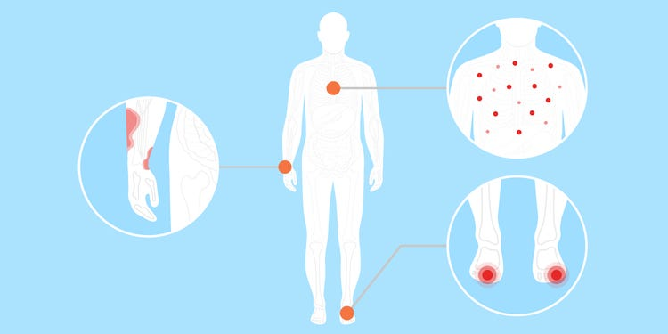 هناك خمس حالات جلدية يمكن ربطها بفيروس كورونا.
