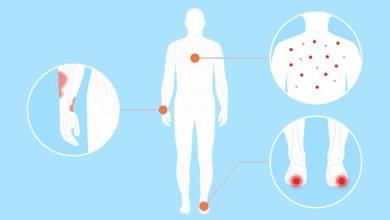 Photo of دراسة جديدة: 5 أمراض جلدية مرتبطة بفيروس كورونا