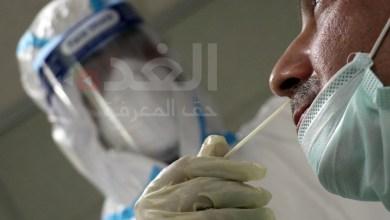 Photo of صحة إربد: إجراء 700 فحص كورونا بمختبر مستشفى الأميرة رحمة