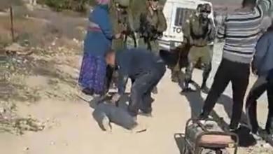 Photo of فلسطيني يُصاب بشلل رباعي بعد أن أطلق الاحتلال النار عليه من مسافة صفر