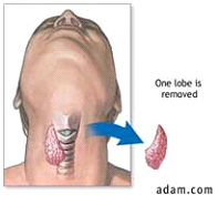 Bahrain ENT Advice Thyroid Gland Surgery
