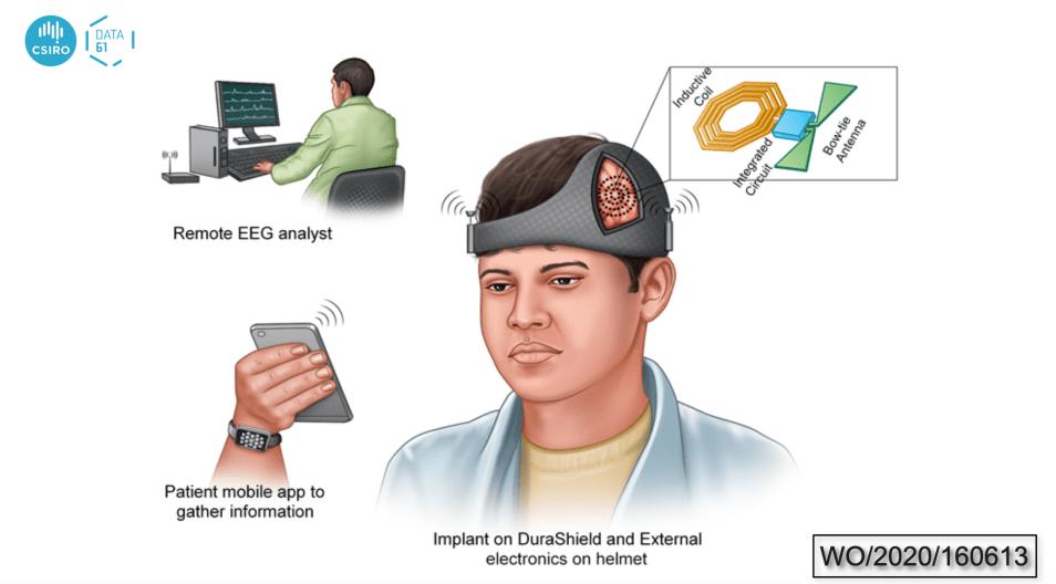 Machine learning for brain seizure detection
