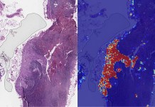 Google AI Can Identify Advanced Breast Cancer More Accurately Than Human Doctors