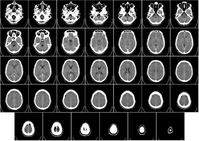 Deep Learning AI Imaging to Accelerate Patient Diagnoses (1)