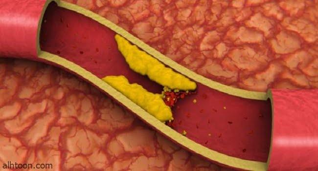 اعراض ارتفاع مستوى الكوليسترول في الدم