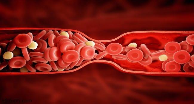 الأعراض الرئيسية لجلطات الدم