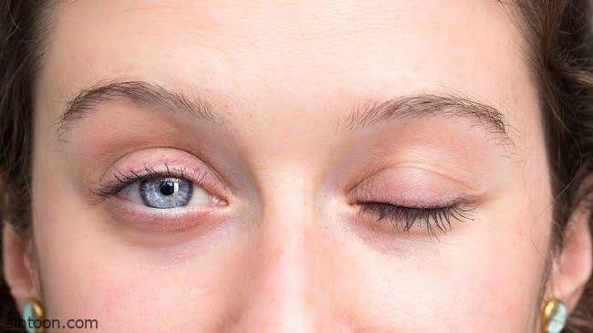 أعراض شلل العصب الوجهي
