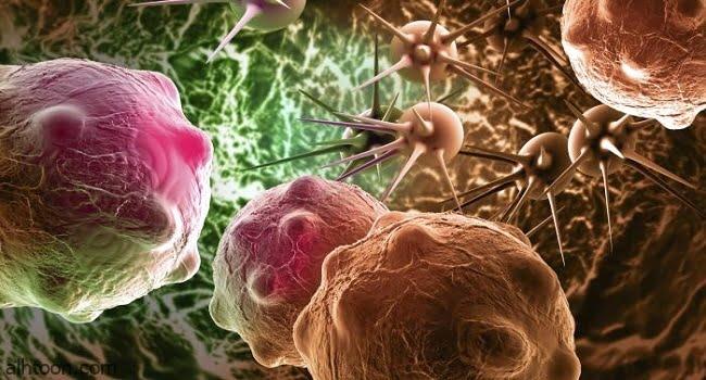 علاج محتمل لسرطان الدماغ