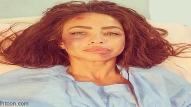 دوللي شاهين داخل المستشفى وكدمات شديدة على وجهها -صحيفة هتون الدولية