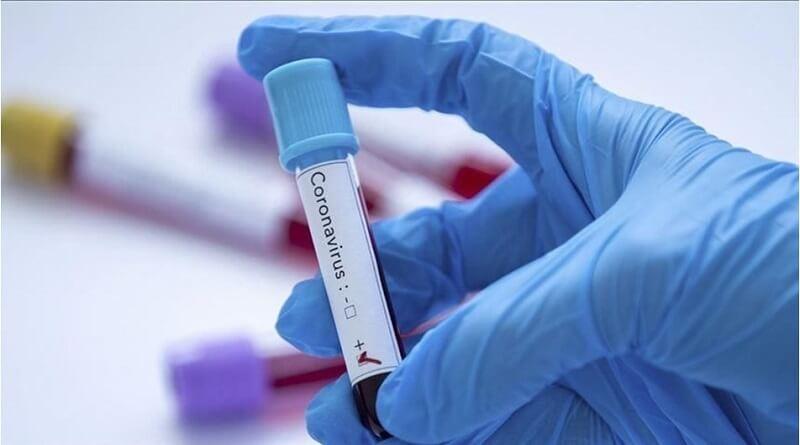 Koronavirüs Tedbirlerinin Sözleşmelere Etkisi