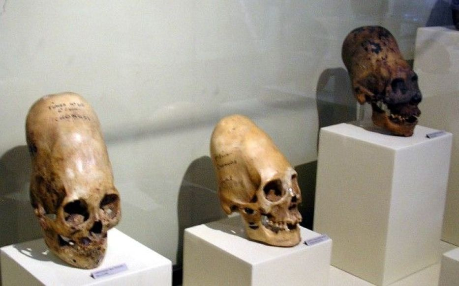 The photo of elongated skulls included in both articles. Photo by: Credit: Marcin Tlustochowicz/Wikimedia Commons