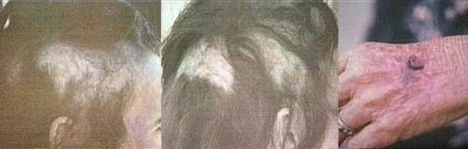 Betty's hair loss and a burn mark