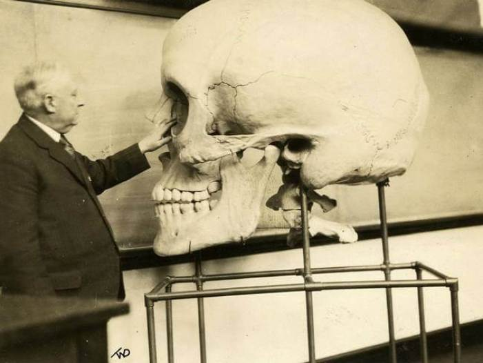 Harvard Medical School Giant Skull fake