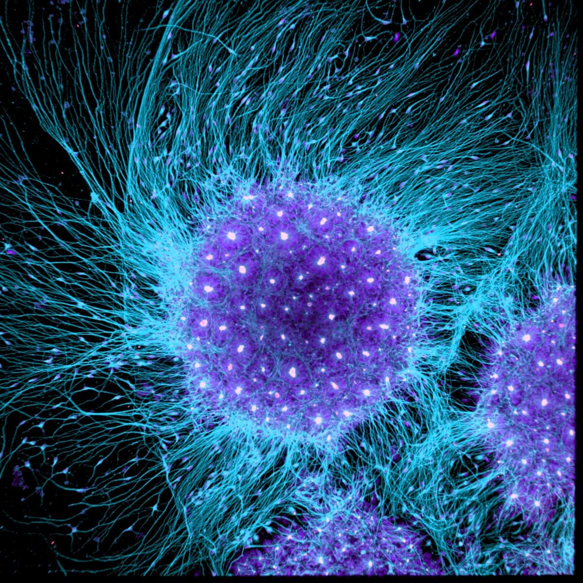 Human brain cells differentiated from embryonic stem cells