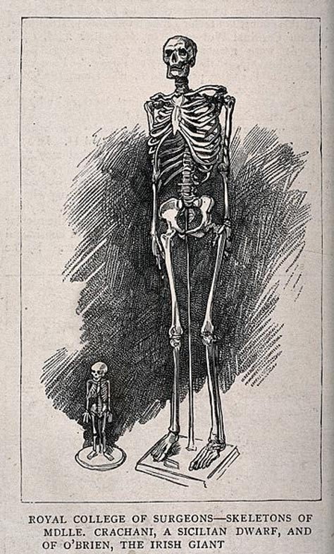 Skeletons of a male giant and a female dwarf, displayed at the Royal College of Surgeons.