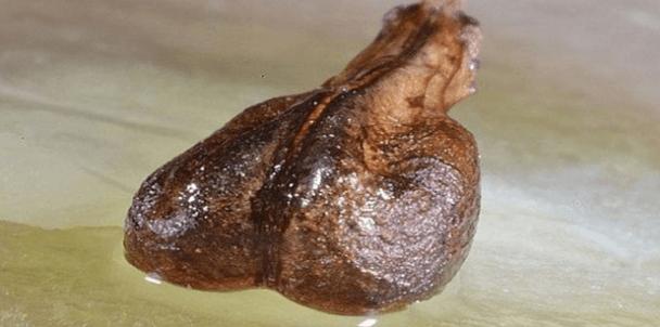 semilla que puede curar el cancer