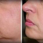 No más arrugas y flacidez en la piel de tu cara. Sólo 2 ingredientes!