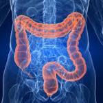 Colon irritable, síntomas y dieta saludable