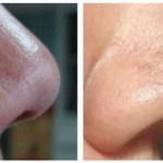 7 usos del bicarbonato de sodio que te volverán una persona más atractiva