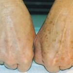 Con este remedio casero podrás blanquear las manchas en la piel
