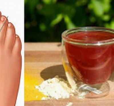 el acido urico en el embarazo como quitar el dolor del pie por gota valores de acido urico en orina
