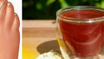 dieta en pacientes con acido urico elevado alimentos combatir acido urico para bajar el acido urico naturalmente