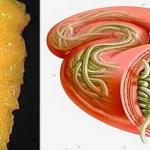 Sólo tiene que utilizar estos 2 ingredientes para vaciar todos los depósitos de grasa y parásitos de su cuerpo sin esfuerzo