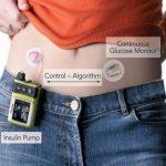 Un páncreas artificial para diabéticos asocia insulina y celulares, compruébalo aquí.