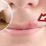 Deshacerse de herpes Usando un simple truco