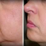 No más arrugas y flacidez de piel en su cara – con Sólo 2 Ingredientes!