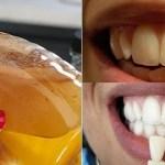 Fantástico! Haga gárgaras con este simple ingrediente y mira qué le pasara a tus dientes