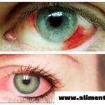 Seguro has tenido los ojos así de rojos, pero no imaginas que se trata de algo tan grave y silencioso