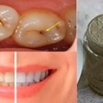 Cura las caries, la enfermedad de las encías y blanquea los dientes con esta pasta de dientes natural casera