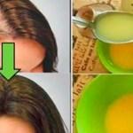 Deja a todos los médicos sorprendidos: aplica este remedio y tu cabello crecerá más rápido que nunca