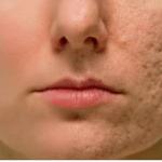 Frote esto en cualquier cicatriz, arruga o mancha que tiene en su piel y mira como desaparecen en cuestión de minutos! Incluso los médicos están sorprendidos!