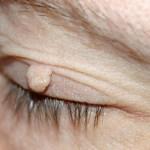 ¡Muchos las tenemos pero nadie sabe quitarlas rapidamente! Este método elimina-verrugas resultados casi inmediatos!