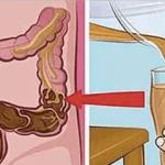 Esto elimina toda la mugre, desechos, parásito, y caca acumulada del colon inperdible