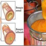 EXCELENTE: jarabe hecho en casa que cura la tos y expulsa flema de los pulmones de los niños y adultos