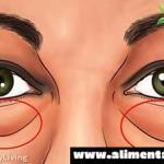 Conoce los mejores tratamientos naturales para eliminar los círculos oscuros y las bolsas bajo los ojos, súper remedios express!