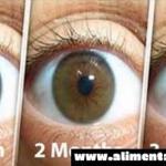 Remedio natural para la limpieza de tus ojos y la mejora de la visión en sólo 3 meses: aquí esta lo que necesitas hacer para evitar la cirugía!