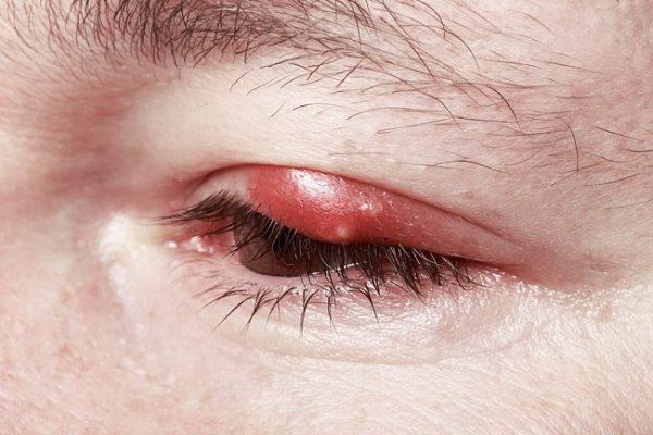 infecciones en el ojo orzuelo