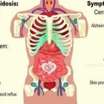 20 signos de que su cuerpo está demasiado ácido y maneras de alcalinizarlo rápidamente