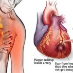 Los médicos aconsejan: 5 cosas simples pueden prevenir el 80% de los ataques al corazón