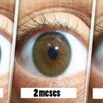 Remedio natural para la limpieza de sus ojos y la mejora de la visión en sólo 3 meses: aquí está lo que usted necesita hacer para evitar la cirugía!