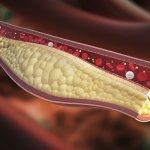 9 hábitos que reducen el colesterol sin estatinas peligrosas