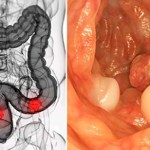 El compuesto de frutas que mata las células madre del cáncer, según la investigación