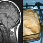 Precaución: ¡Protege tu cerebro del Alzheimer! Estos 10 productos naturales te podrán ayudar…