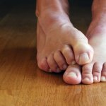 7 remedios naturales para el pie de atleta