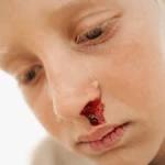 Hematomas y sangrado – ¿Qué es normal durante la niñez?